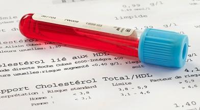 comment-savoir-que-l'-un-problème-de-cholestérol